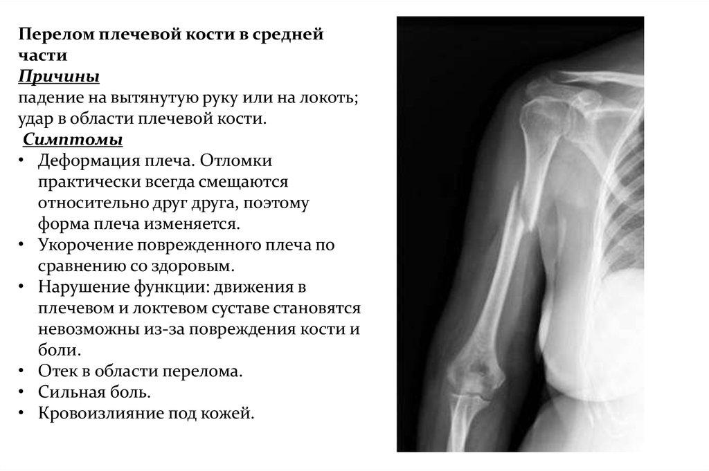 Полное расхождение суставных концов костей относительно друг друга боль в челюстном суставе