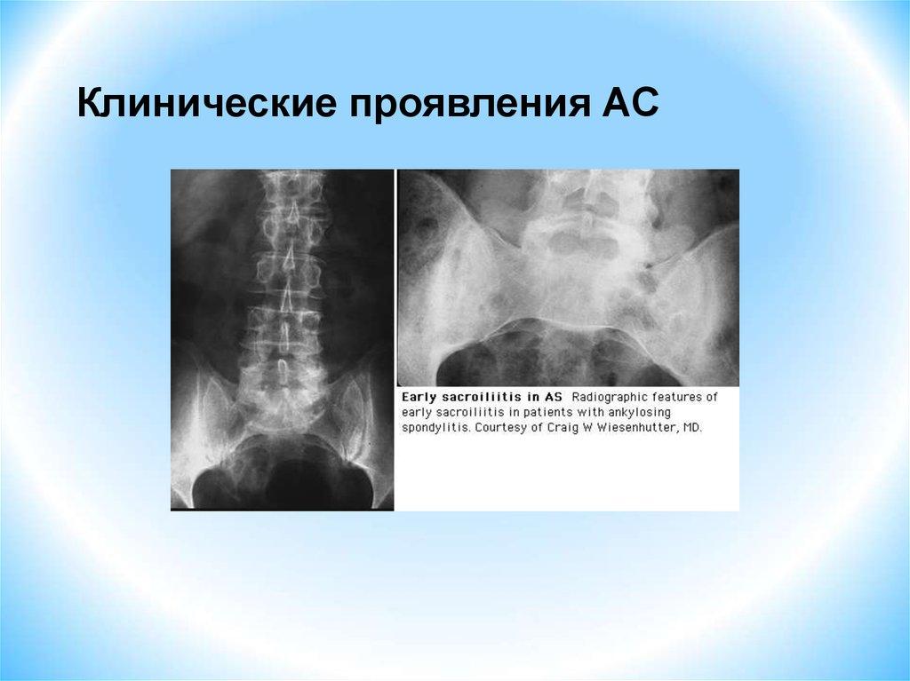 Боли в спине и псориаз - Псориаз. Лечение