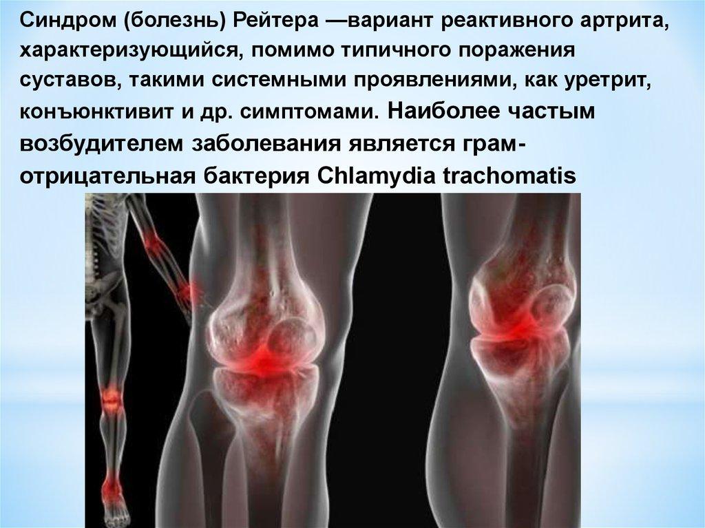 Реактивный артрит и хламидиоз лечение фото