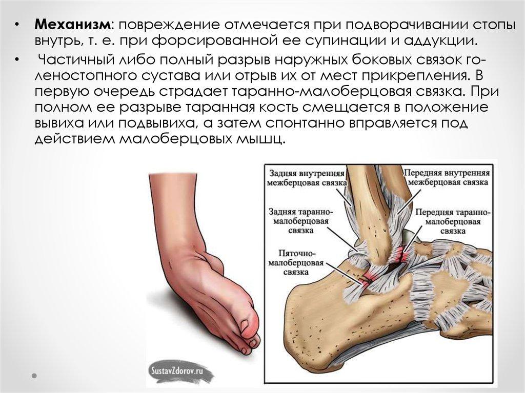 Повреждение связочного аппарата коленного сустава мкб 10 протезы суставов цены