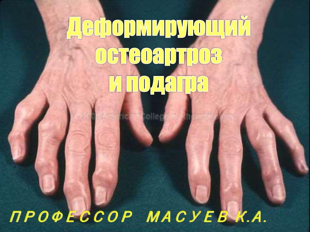 Как можно лечить вывих руки