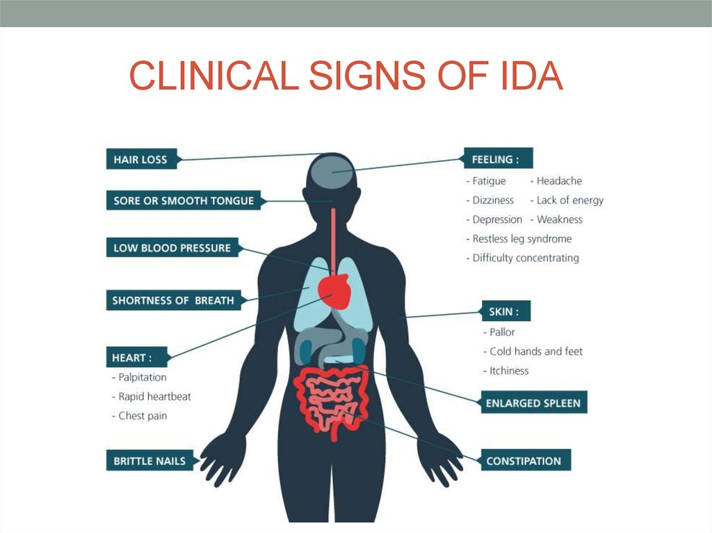 CLINICAL SIGNS OF IDA