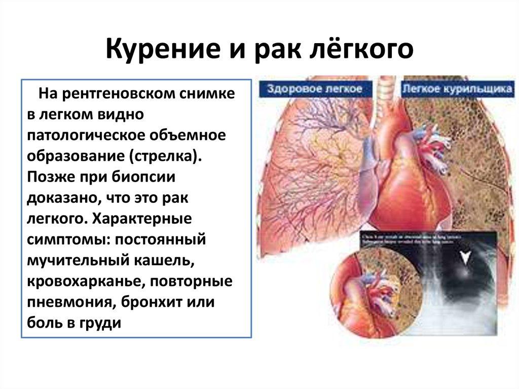 Картинки курение и рак легкого