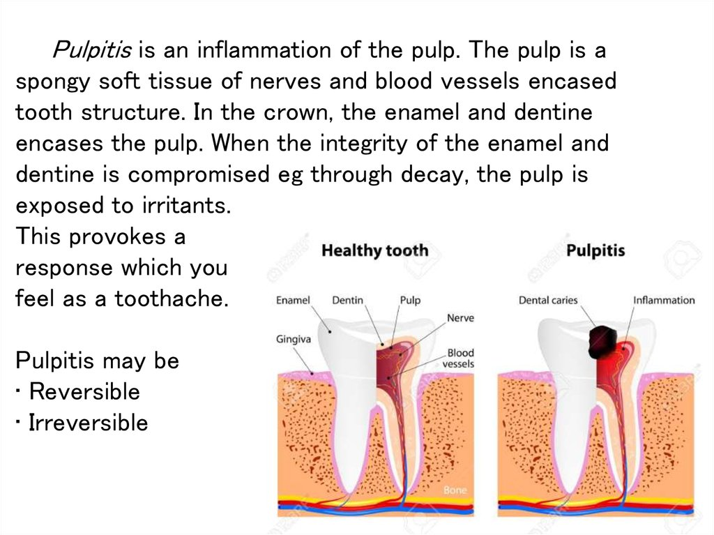 Pulpitis is an inflammation of the pulp. The pulp is a spongy soft tissue of nerves and blood vessels encased tooth structure.