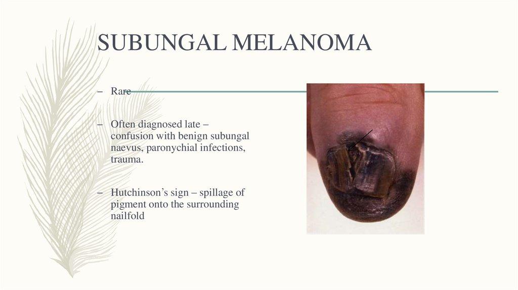 Malignant Melanoma Online Presentation