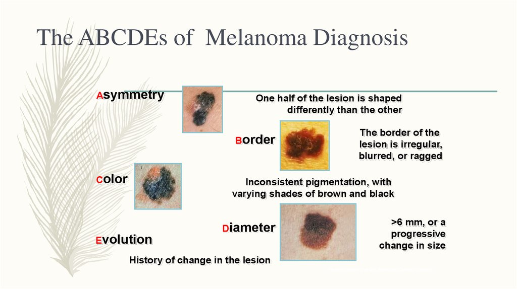 malignant melanoma essay This is the first page of cancernet's guide to melanoma a cancerous tumor is malignant, meaning it can grow and spread to other parts of the body.