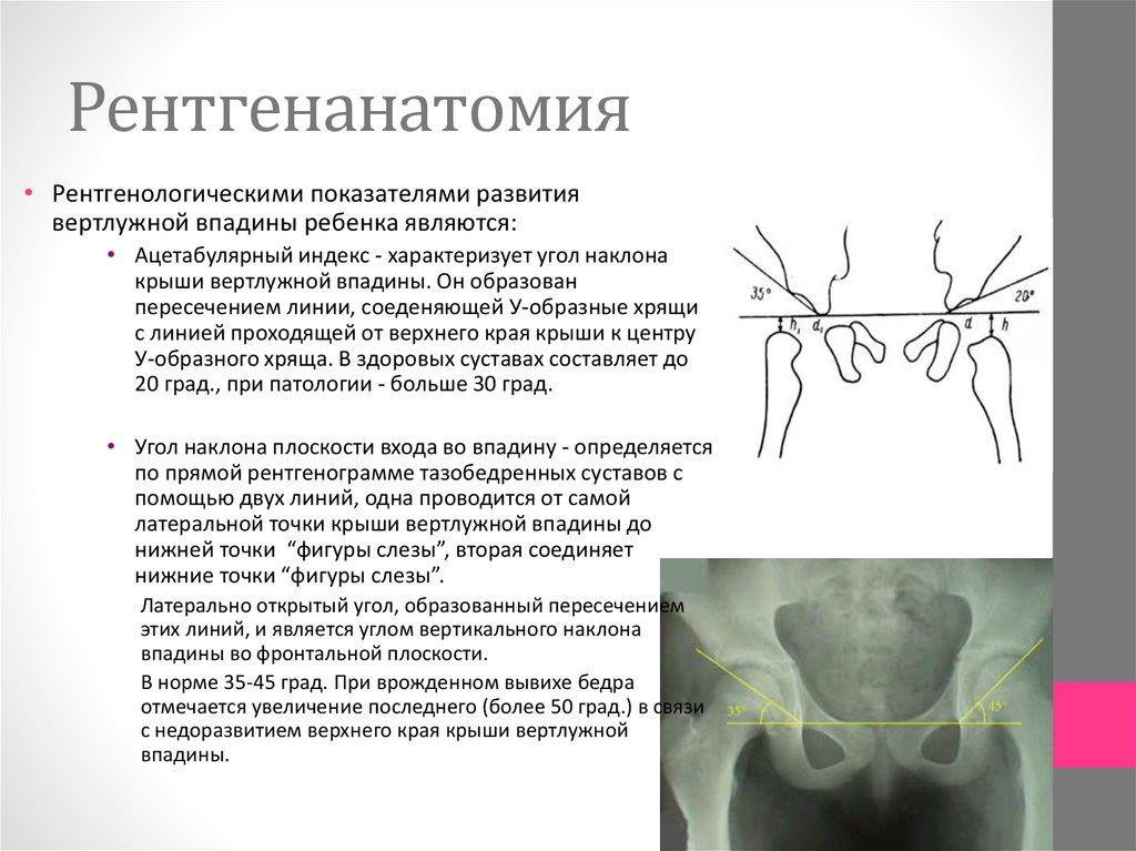 Дисплазия тазобедренных суставов увеличение угла 34 градуса шишка на области лучезапястного сустав