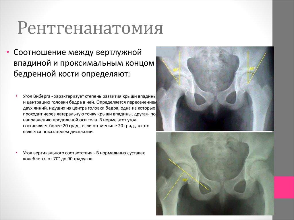 Дисплазия тазобедренных суставов увеличение угла 34 градуса как правильно перевязать голеностопный сустав