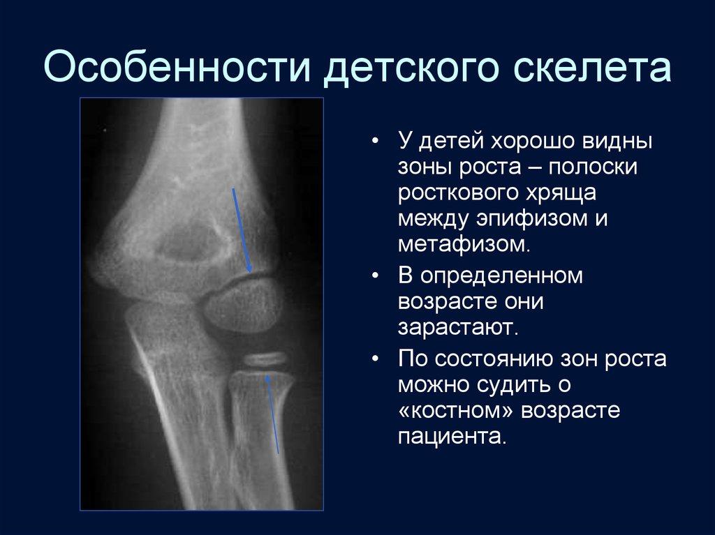 Костна-суставная система по рентгенологии стоимость ортезов для коленного сустава
