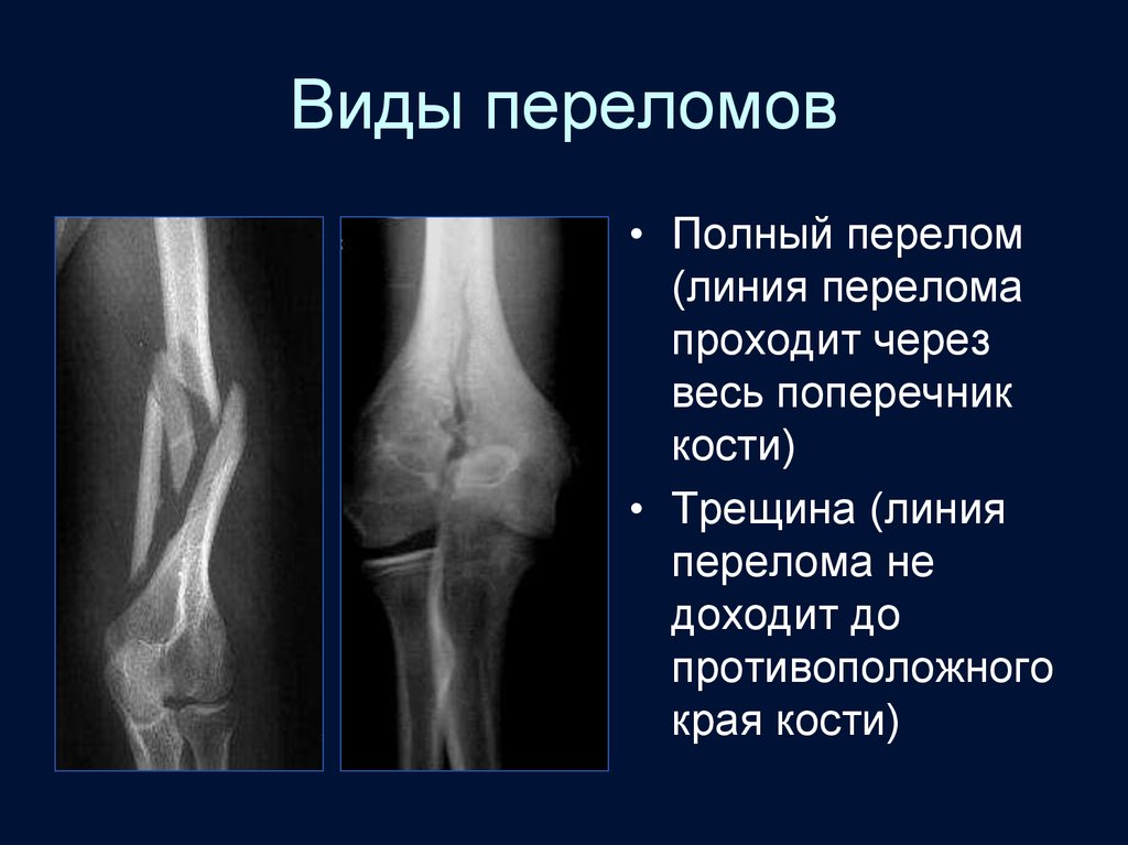 Лучевая диагностика травматических повреждений костей и суставов боль и отеки суставов