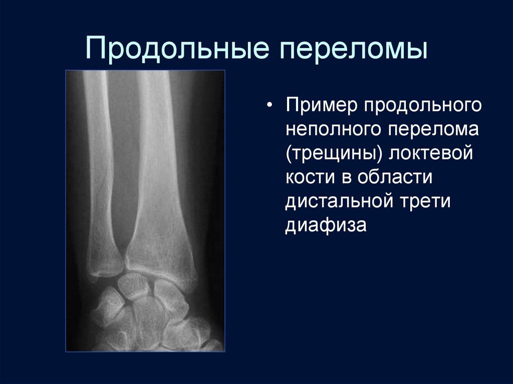 Лучевая диагностика травматических повреждений костей и суставов отек коленного сустава лечить