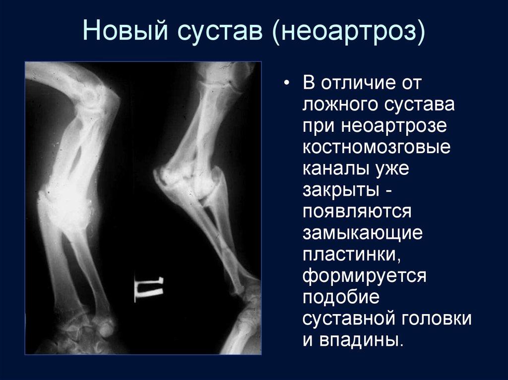 Ложный сустав на ребрах лечение суставов в донецке клиники