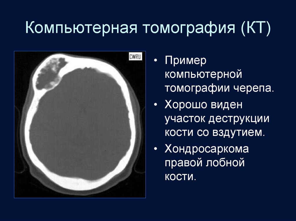 Костна-суставная система по рентгенологии артроз тазобедренного сустава лечение в киеве