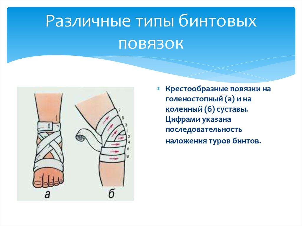 Наложение повязок на раны в картинках