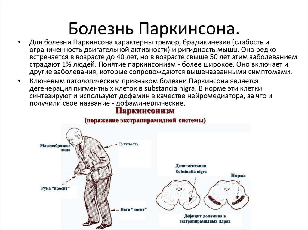 Болезнь Паркинсона: что означает диагноз