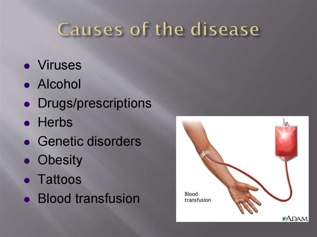 Causes of the disease