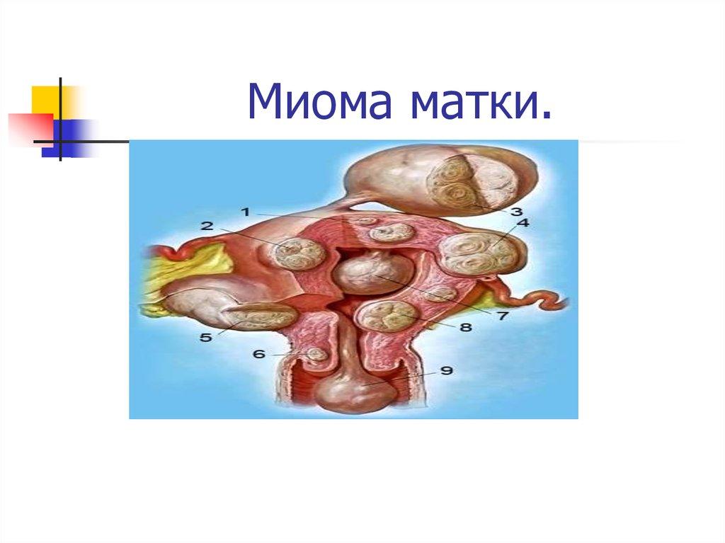 Лечение миомы матки в Киеве