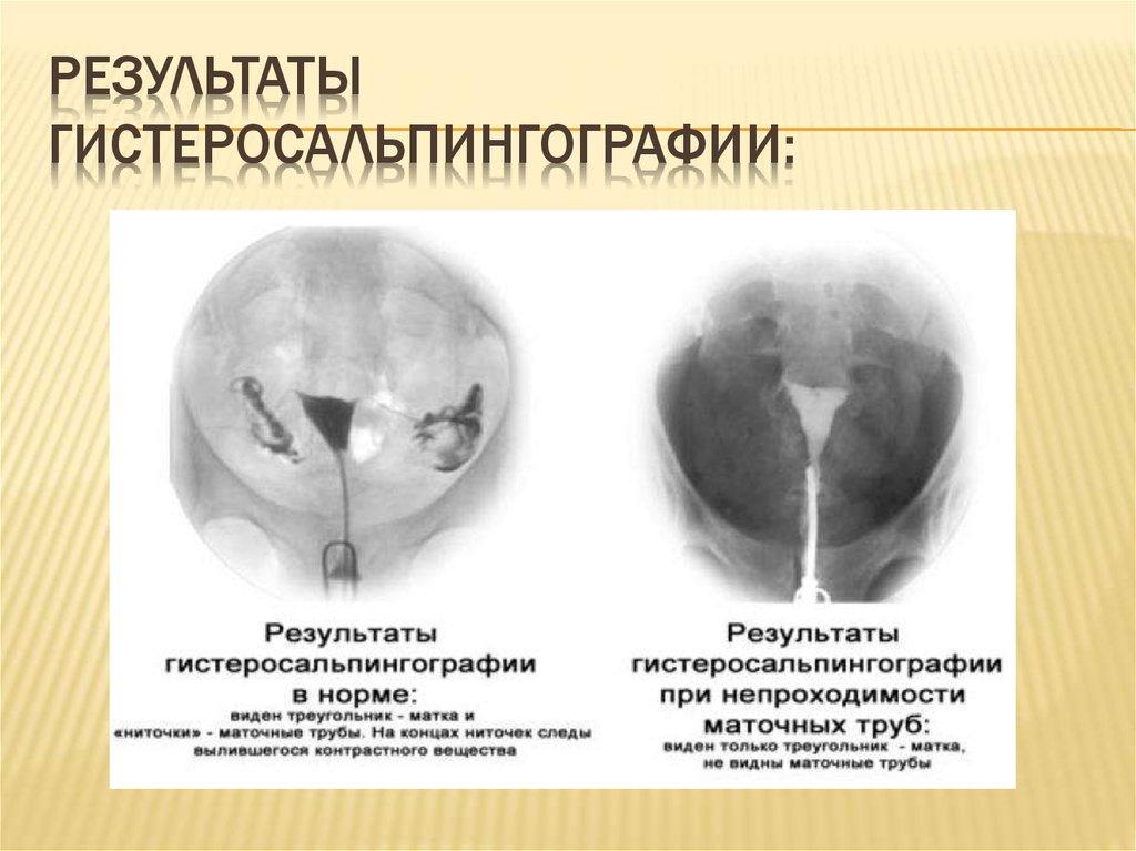 что такое пертурбация маточных труб