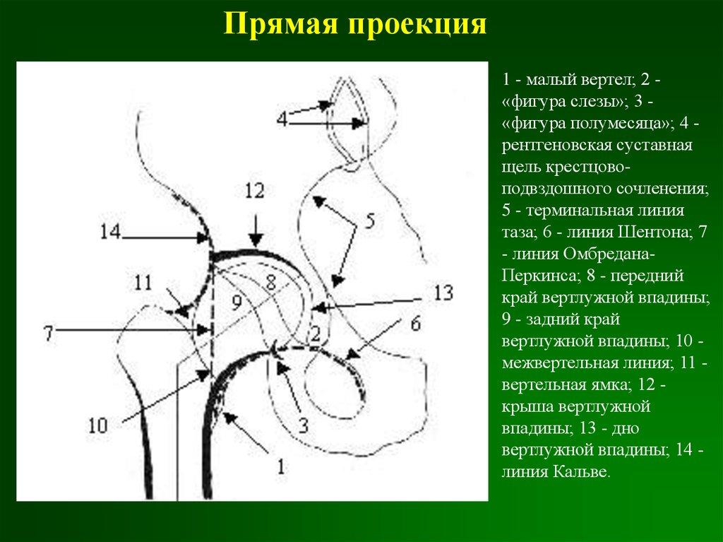 Инклинаия суставов ложный сустав ключицы последствия