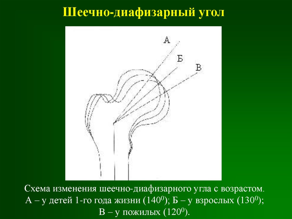 Дисплазия тазобедренных суставов у детей угол виберга дисплазия коленных суставов фото