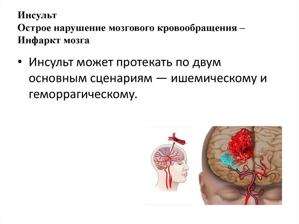 Как предотвратить инсульт головного мозга препараты