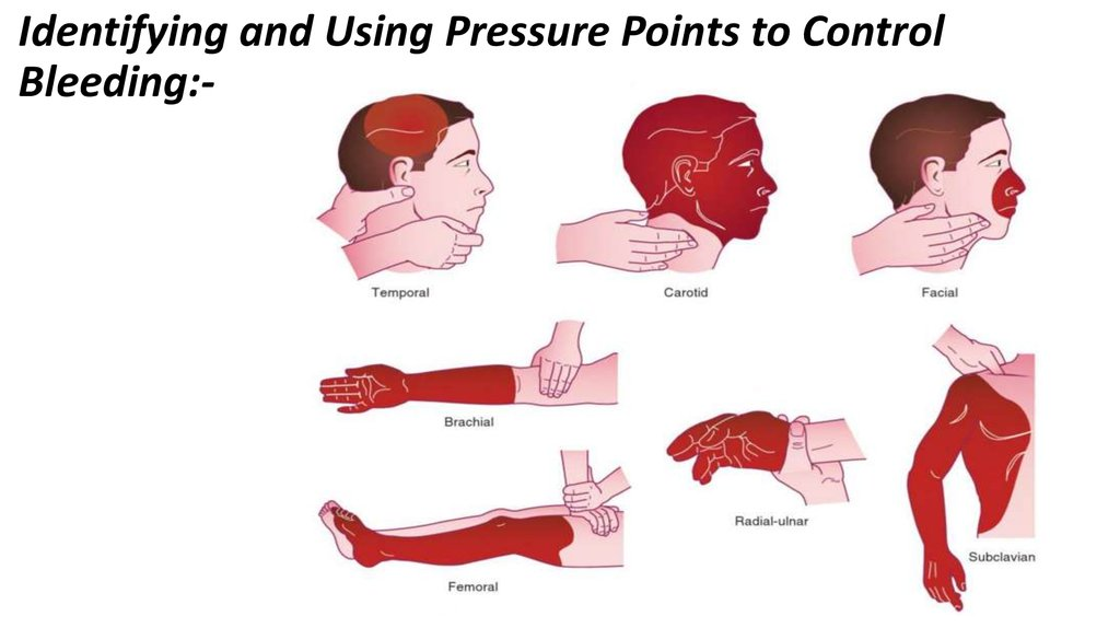 Identifying and Using Pressure Points to Control Bleeding:-
