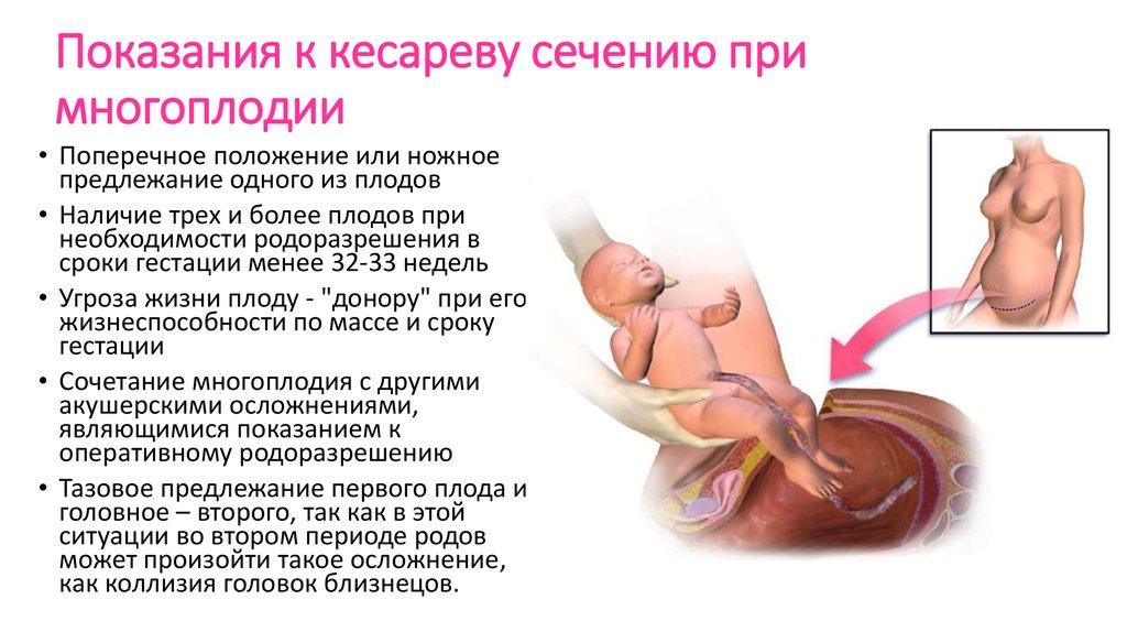 Является ли остеохондроз показанием к кесареву сечению