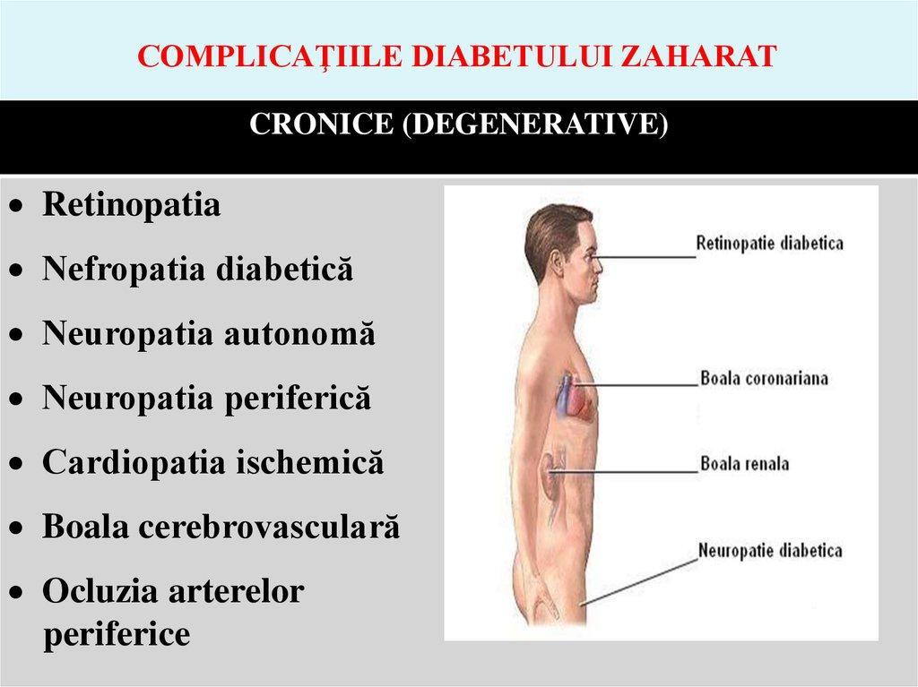 CARDIOPATIA DIABETICA EPUB