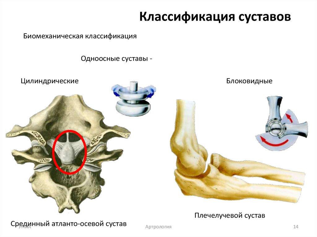 Артрология тазобедренных суставов чем снять боль при артрозе локтевого сустава