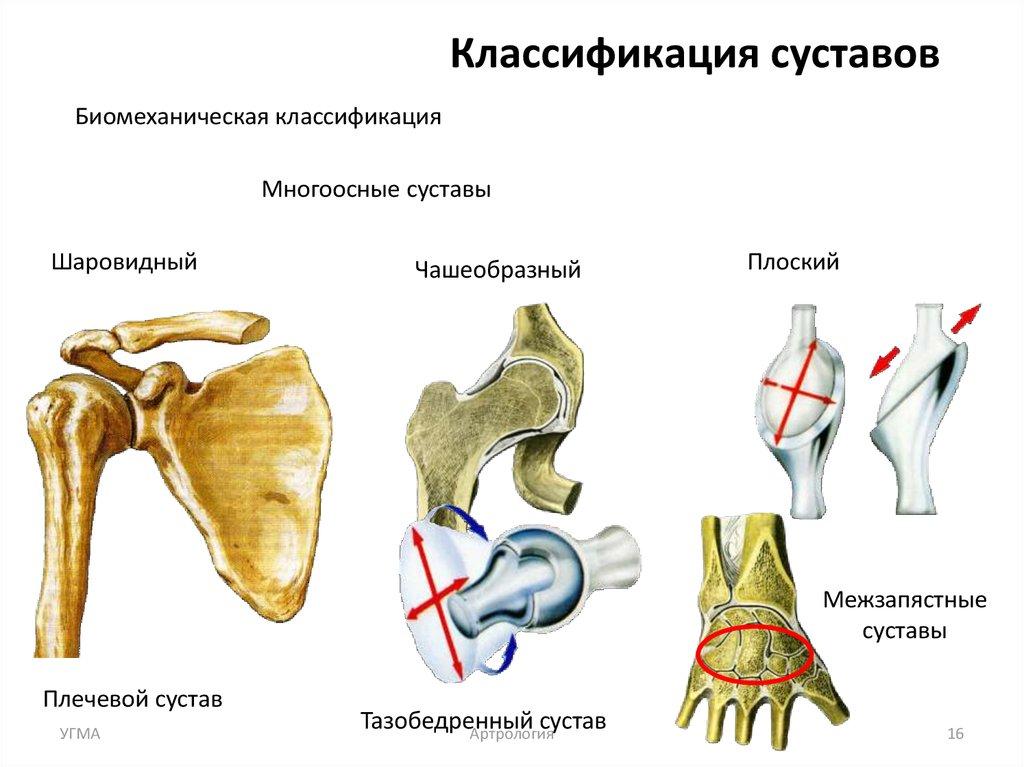 дисплозия тазобедренного сустава у новорожденного