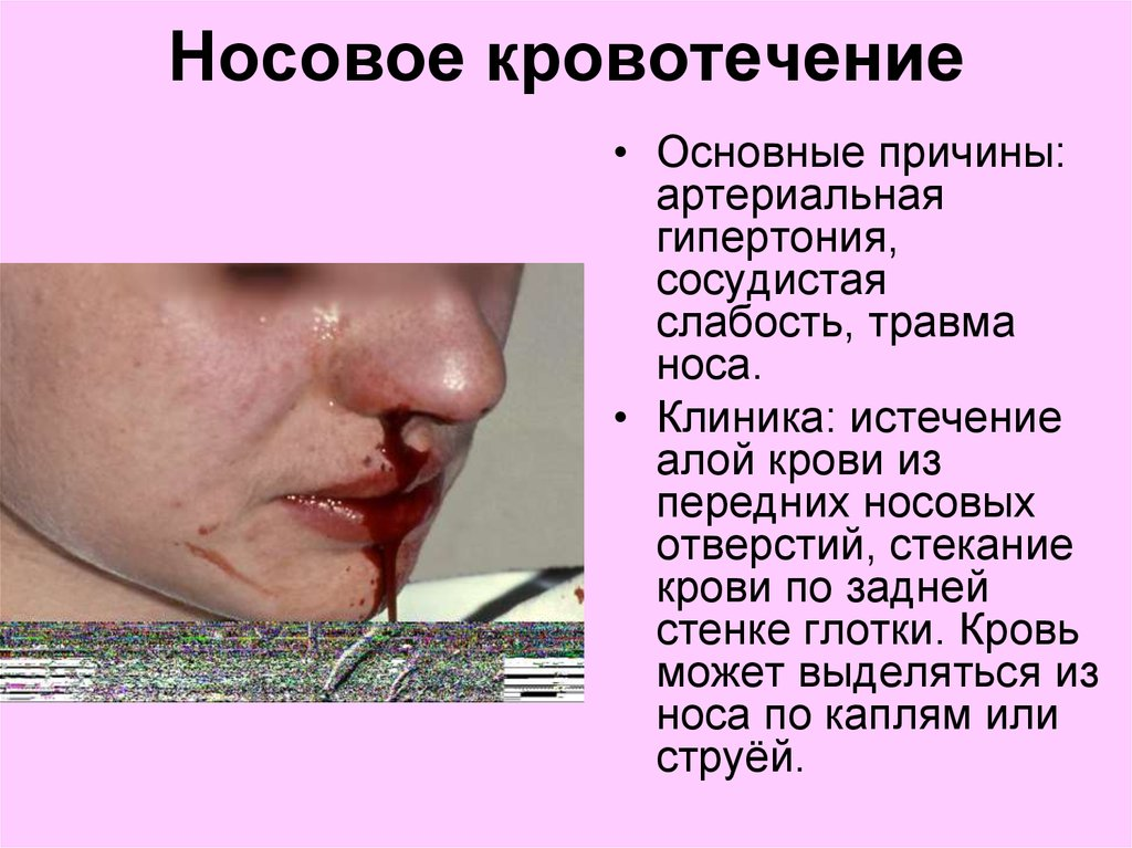 Кровь из носа после