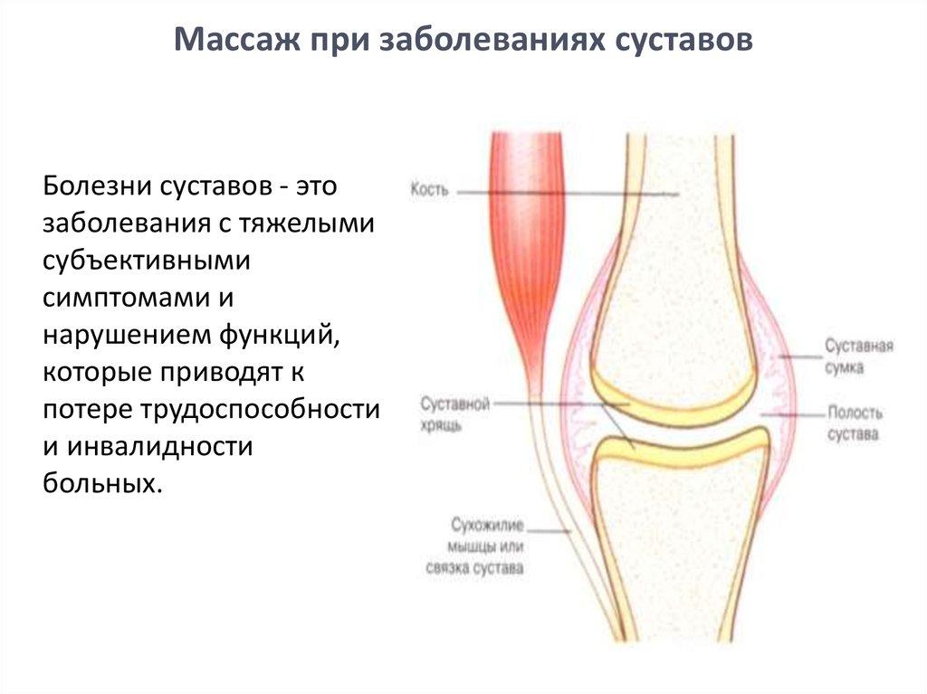 Методика массажа при травмах суставов нужна восстановительная операция после сложного перелома лучезапястного сустава