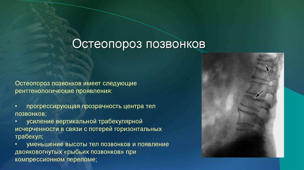 От чего бывает остеопороз позвоночника