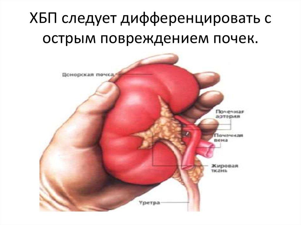 ХБП следует дифференцировать с острым повреждением почек.