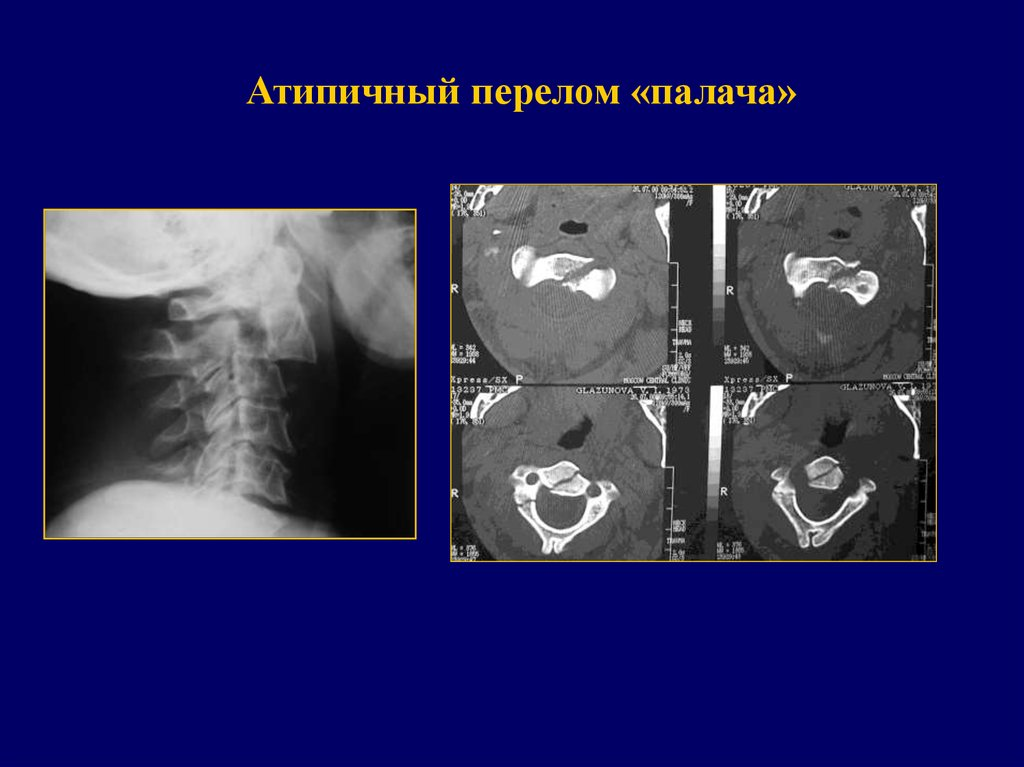 Травматический подвивих фасеточного сустава плазмофорез и лечение суставов