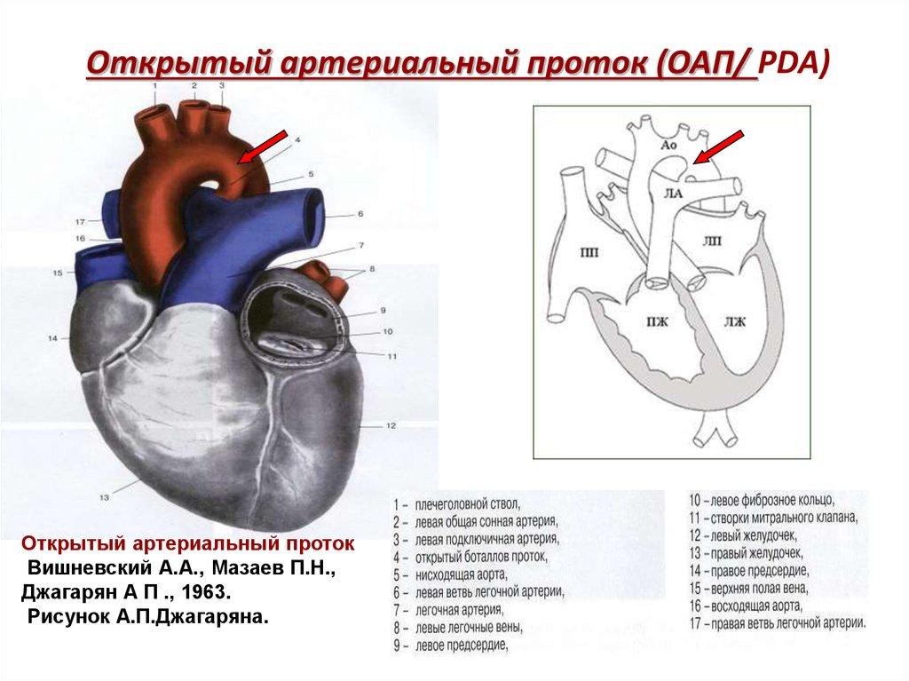 Открытый артериальный (Баталов) проток у детей: благоприятен ли прогноз 16