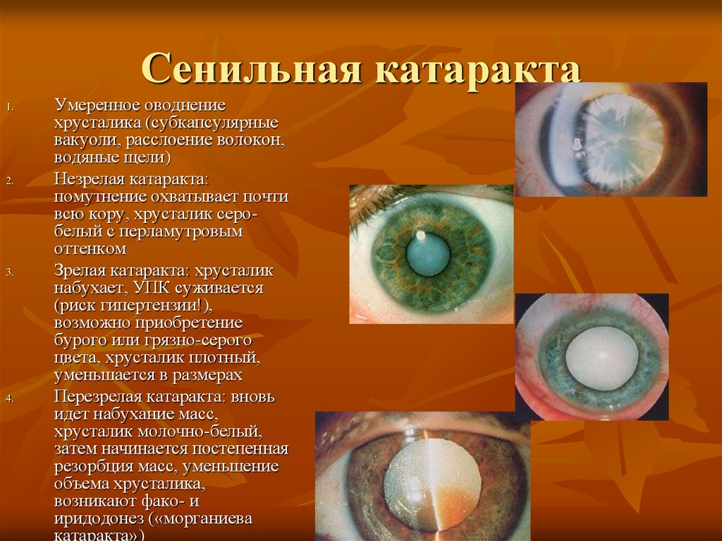Four Stages Of Cataract Maturity