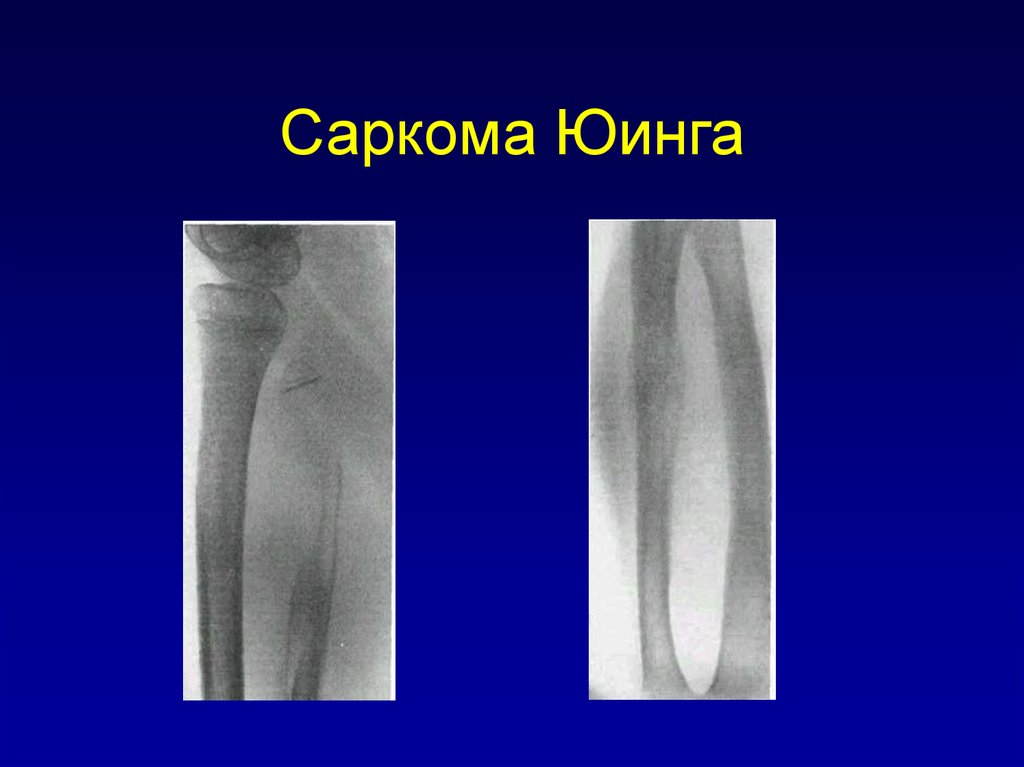 unusual presentation of ewing s sarcoma Ewing's sarcoma is a primary malignancy of the bone affecting individuals in the divond decade of life primary sarcomas of the spine are rare and the occurrence of primary ewing's sarcoma in.