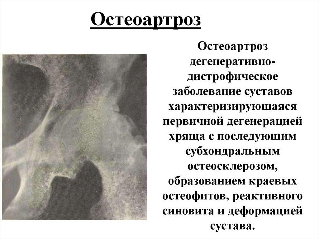 Заболевание суставов краевой силероз геморрагический васкулит кожно-суставная форма фото
