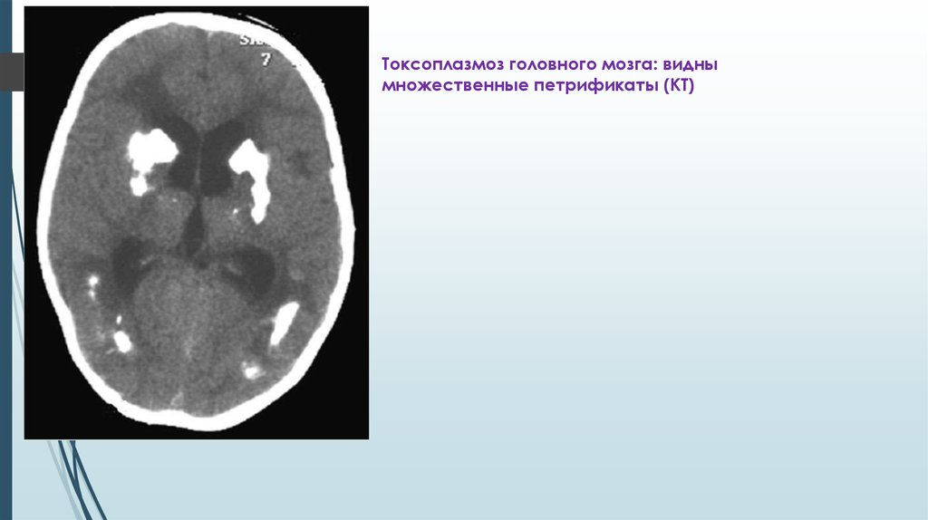 паразиты в нервной системе человека