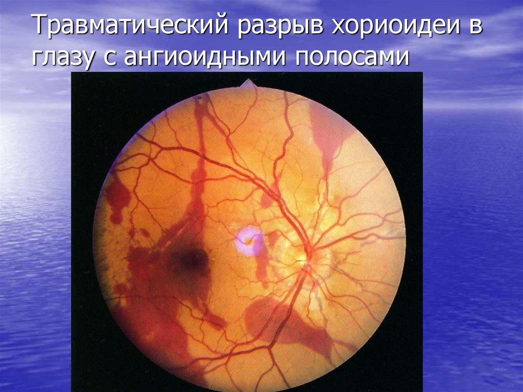 разрыв сосудистой оболочки глаза фото томаты