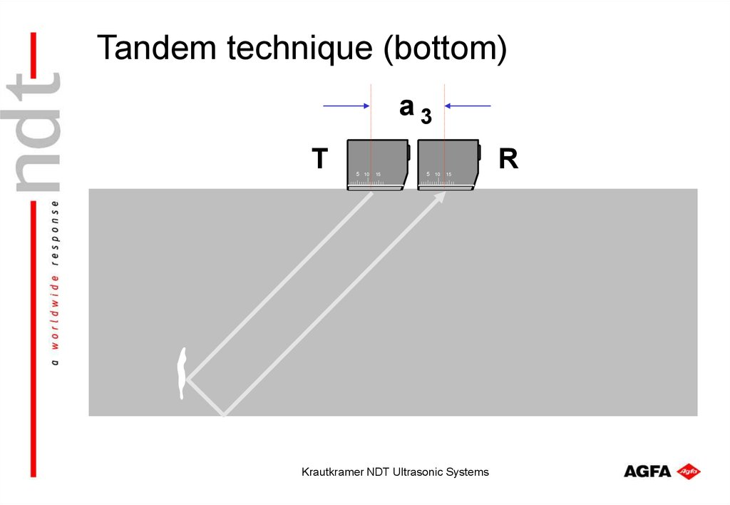 Tandem technique (bottom)