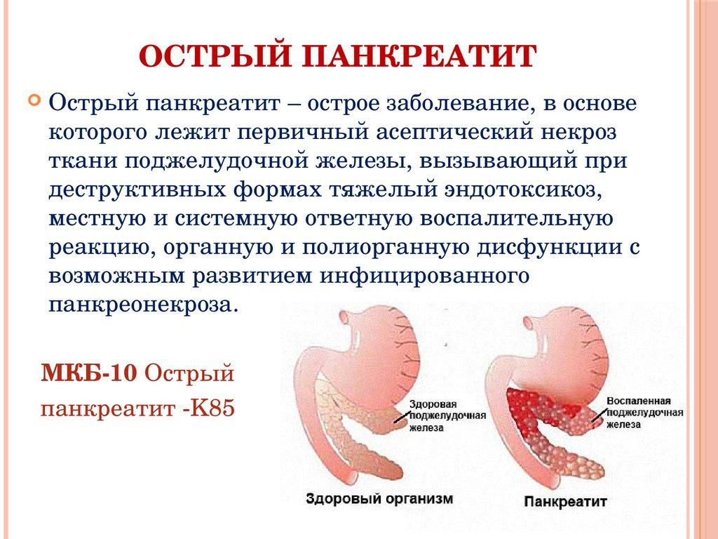 Сколько живут с панкреатитом