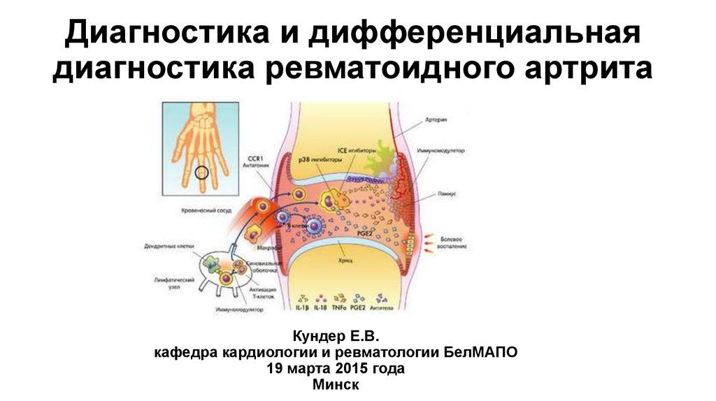 Современные методы лечения ревматоидного артрита