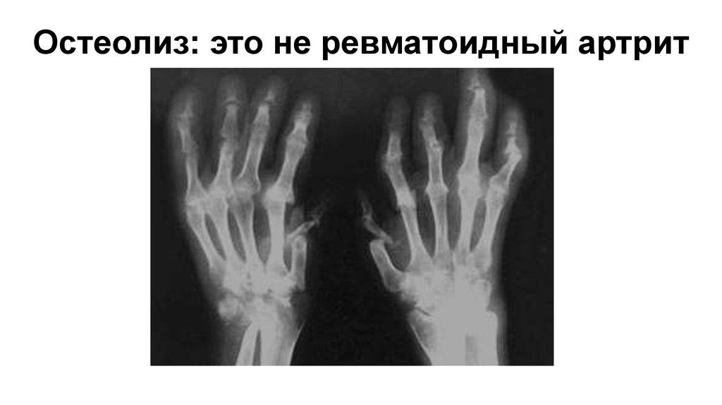 Чем отличается остеоартрит от ревматоидного артрита - orientandoo.com