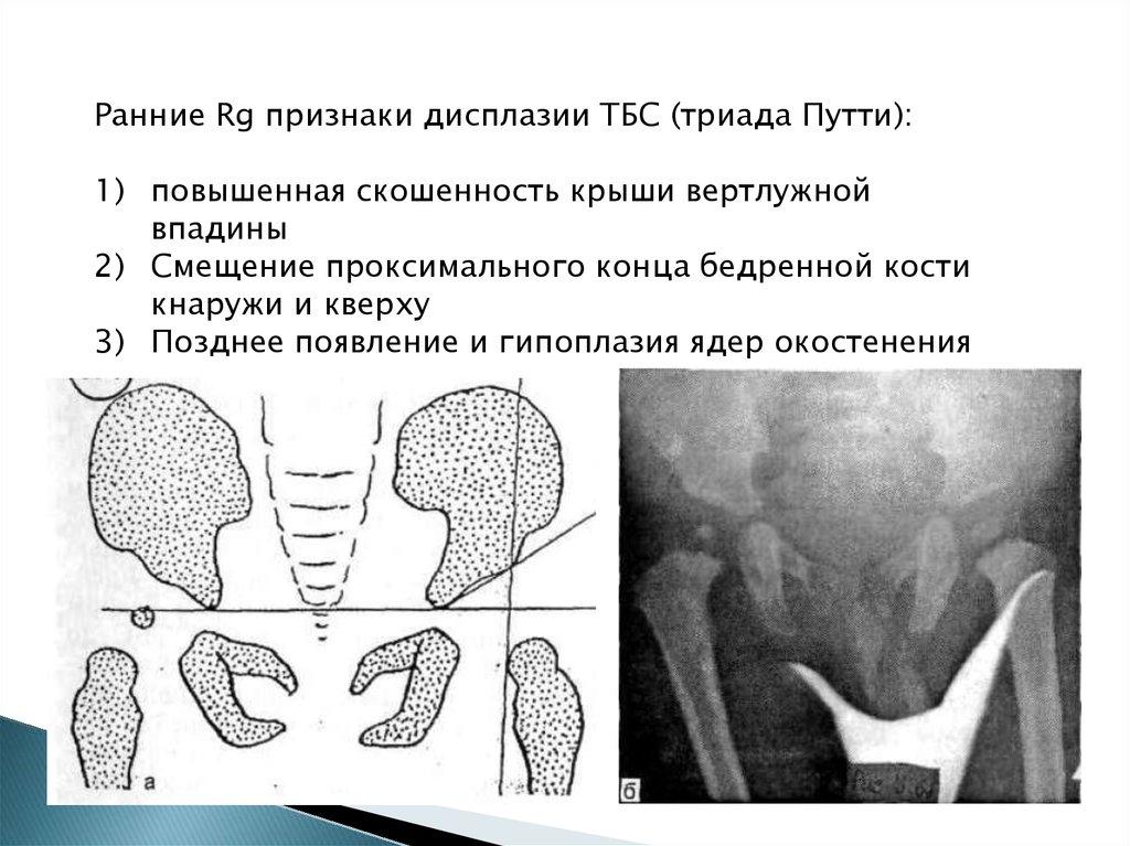 Недоразвитие тазобедренных суставов 2a стадии для суставов полезные свойства