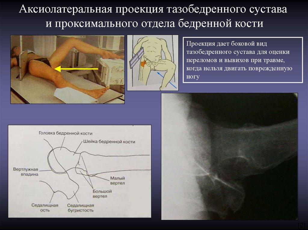 Нарушение центрации в тазобедренных суставах гипоплазия головки народные средства при болях в сустава
