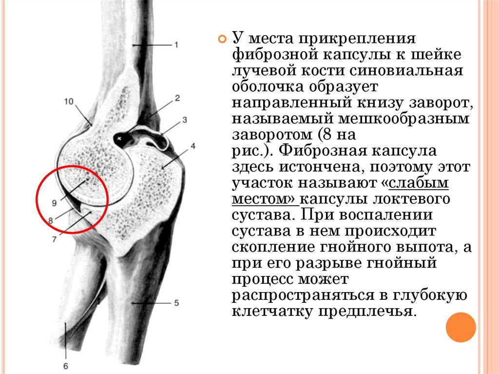 Фиброз капсулы сустава синдром байкова коленный сустав