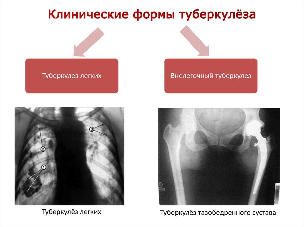 Туберкулез тазобедренного сустава эпидемиология у подростка болят суставы ног и рук