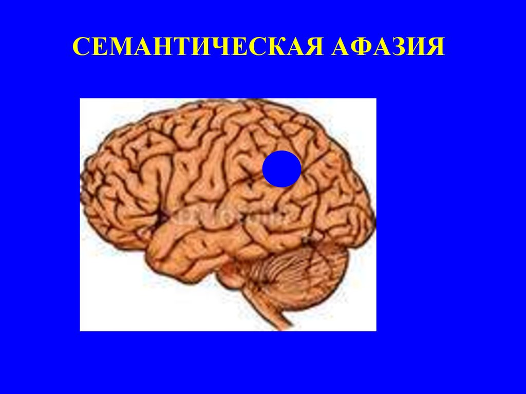 an overview and background on aphasia Introduction aphasia is a language disorder acquired subsequent to brain damage that affects production and understanding of spoken and written language in varying degrees and patterns associated with the size and site of the lesion (see symptoms and neurological correlates.